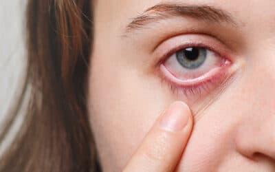 Alergia ocular y el maldito picor de ojos en primavera